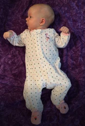 Asymmetrical Tonic Neck Reflex in infant