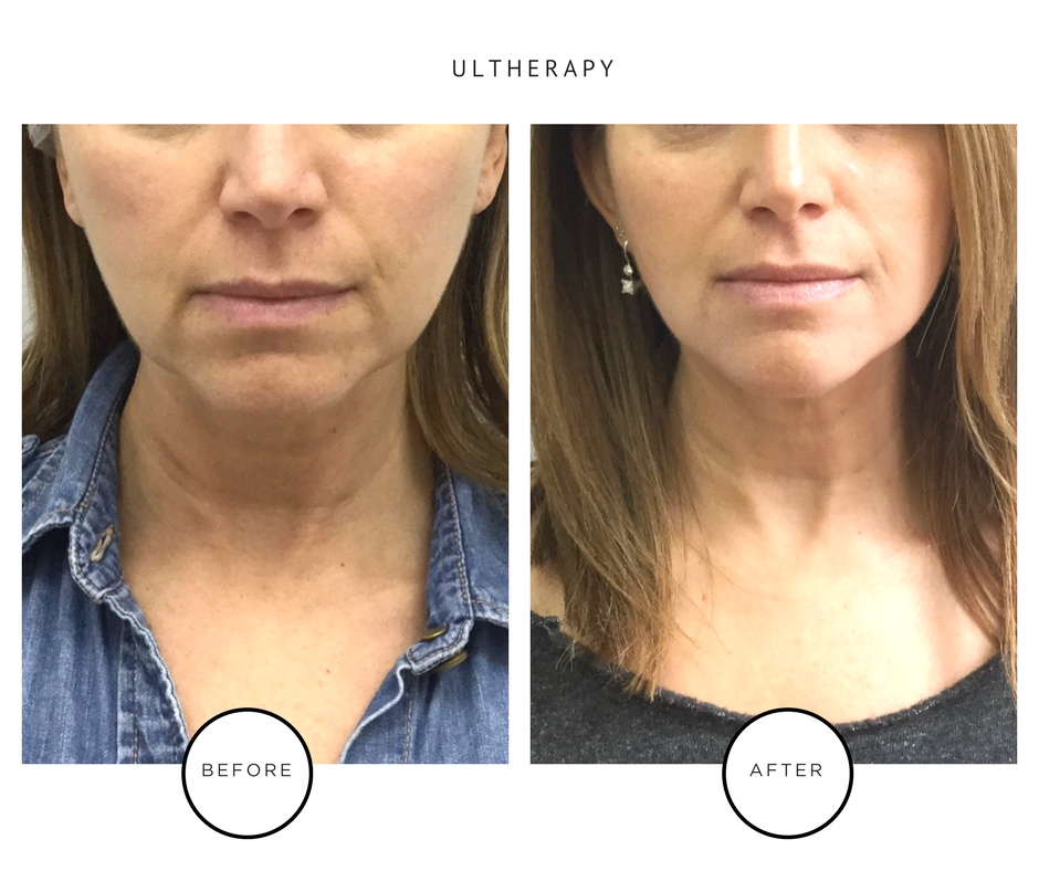 Best Ultherapy New York City Results _Park Avenue Skin Solutions_Lauren Abramowitz