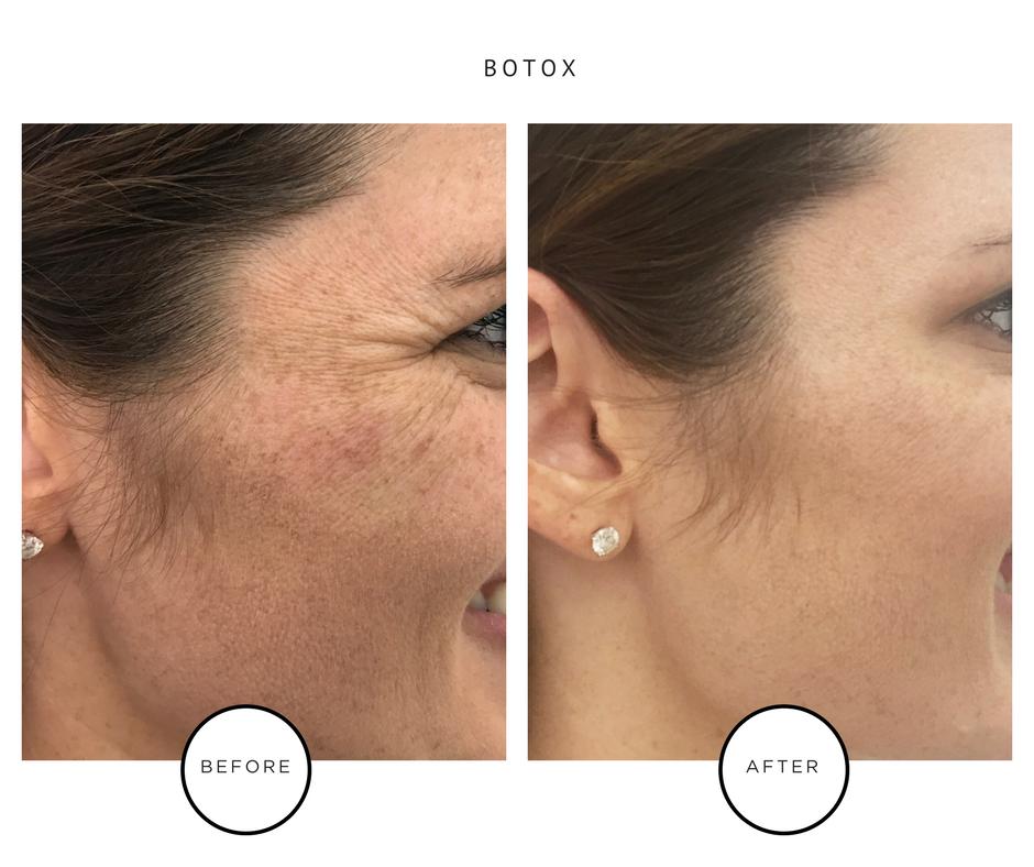 Best Botox - Park Avenue Skin - NYC Dermatology