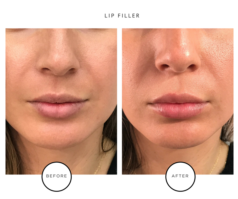 Park Avenue Skin Solutions_Tribeca NYC_Lip Fillers Results