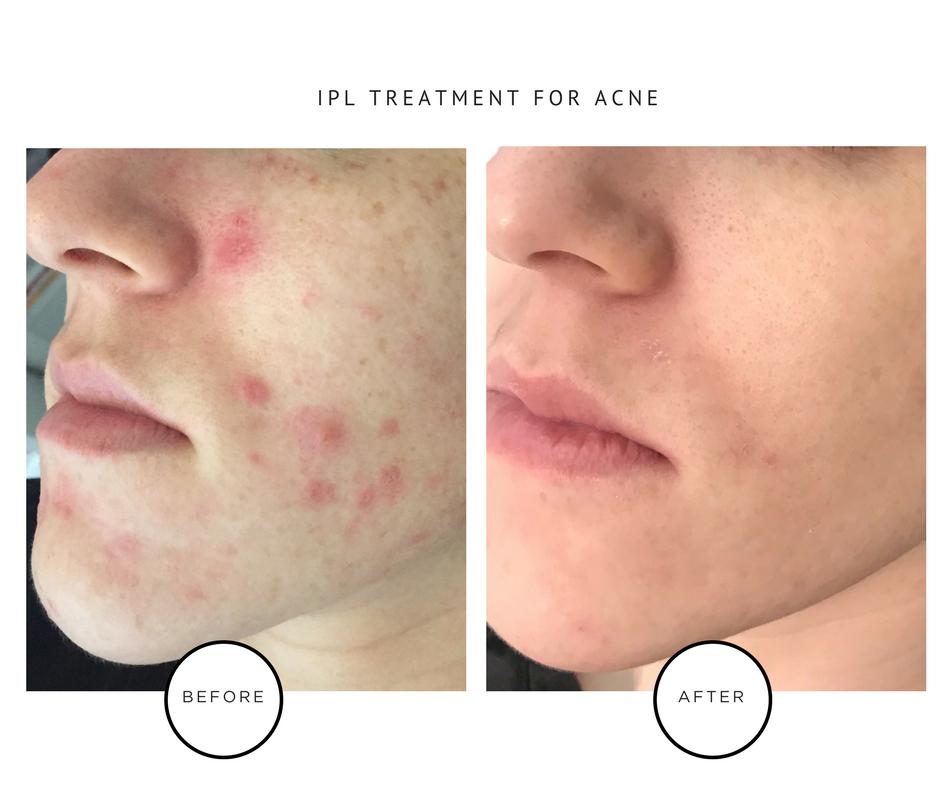 IPL Laser Treatments for Hormonal Adult Acne_Park Avenue Skin Solutions
