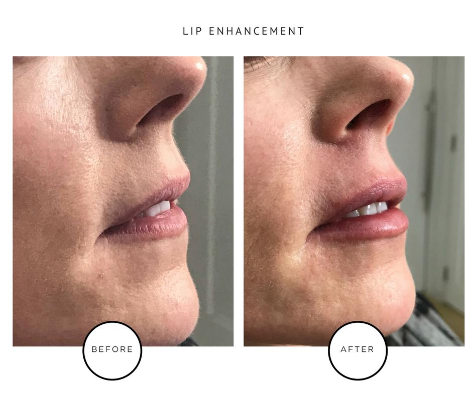 Lip Enhancement-2.PNG