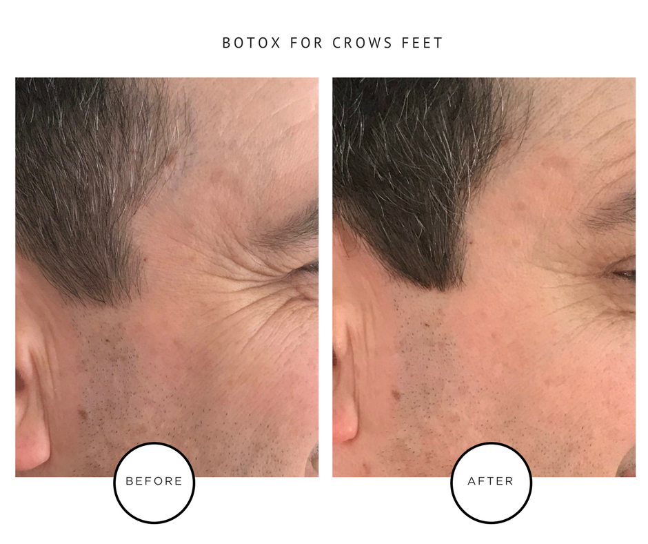 Copy of BOTOX FOR CROWS FEET FOR THE WEBSITE-4.PNG