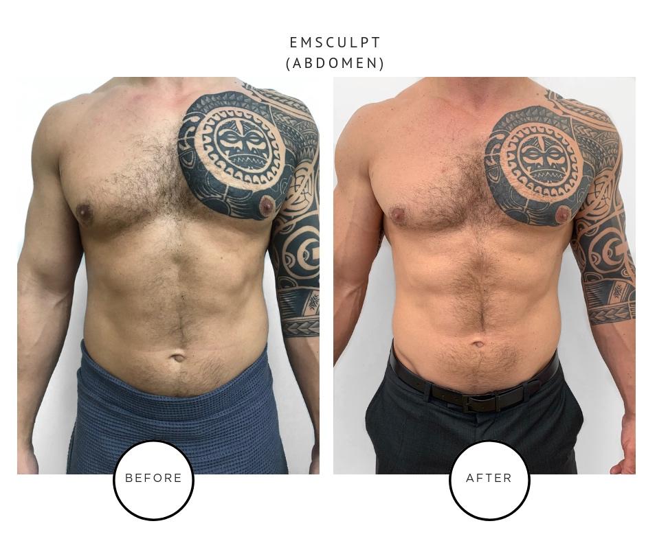 Emsculpt Results - Park Ave Skin Solutions - Tribeca NYC.JPG