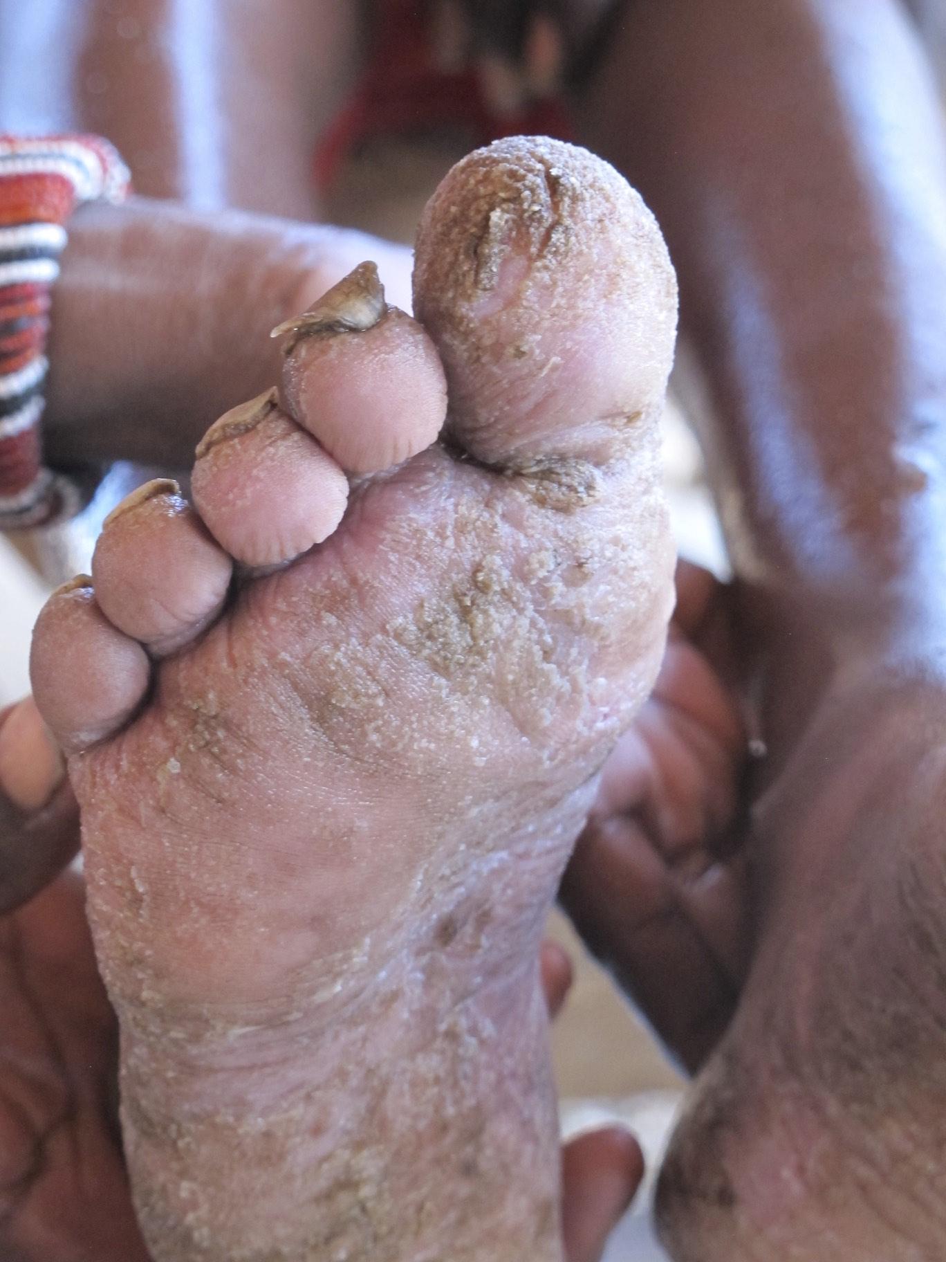 medfoot.jpg