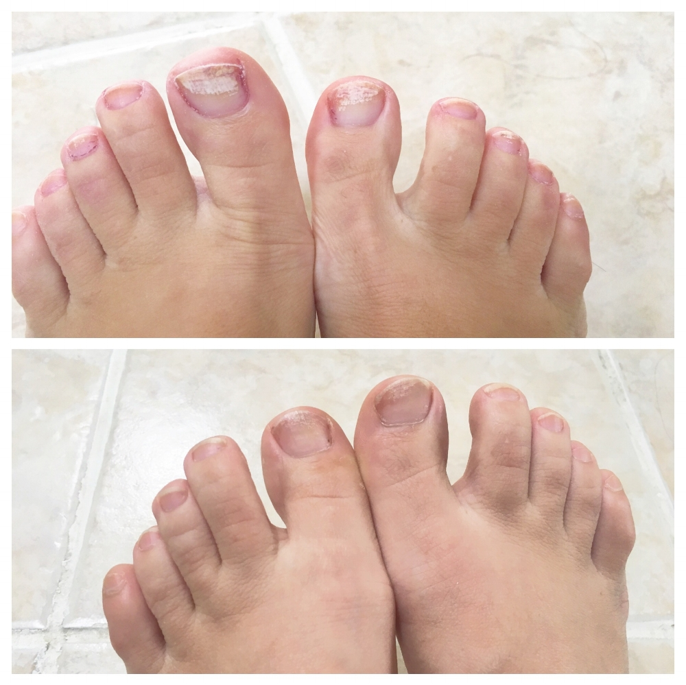 The before photo is after several years worth of back to back rounds of toenail polish and a stint of long distance running. You will see very heavy, white, rough patches on my big toes and smaller ones on a few other nails. The after picture was after about a one week break from polish with applying the oil on a daily basis. Nails are much smoother, and majority of the white rough patches are gone after only one week. Note: The after photo is shot prior to applying the oil.