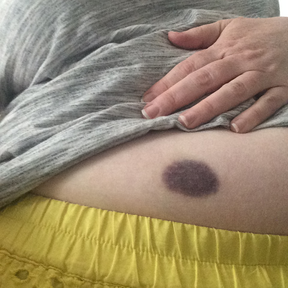 A bruise from one of my shots in my abdomen