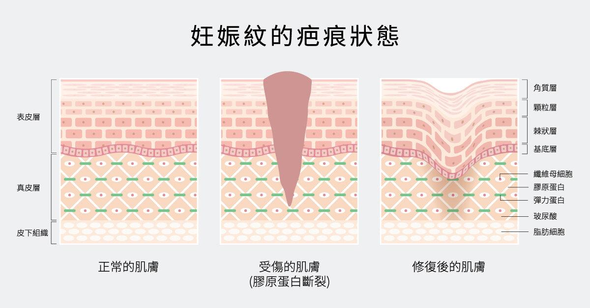 新生膠原蛋白過量增生且不規則排列,易形成疤痕反應。