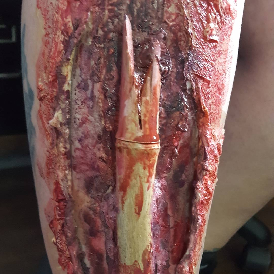 compound fracture close up.jpg