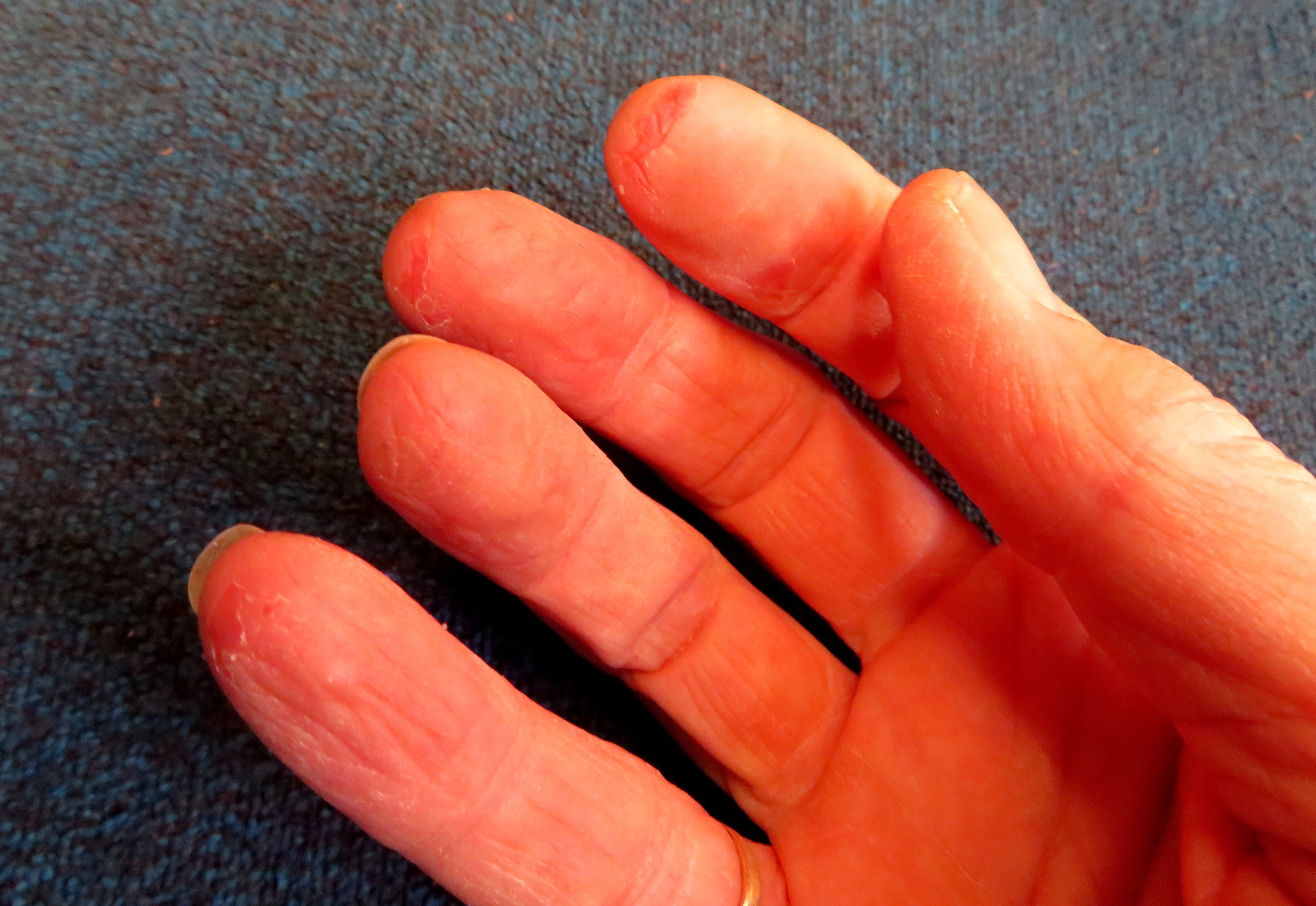 Fingertips sanded raw ... sign of a true sailor girl!