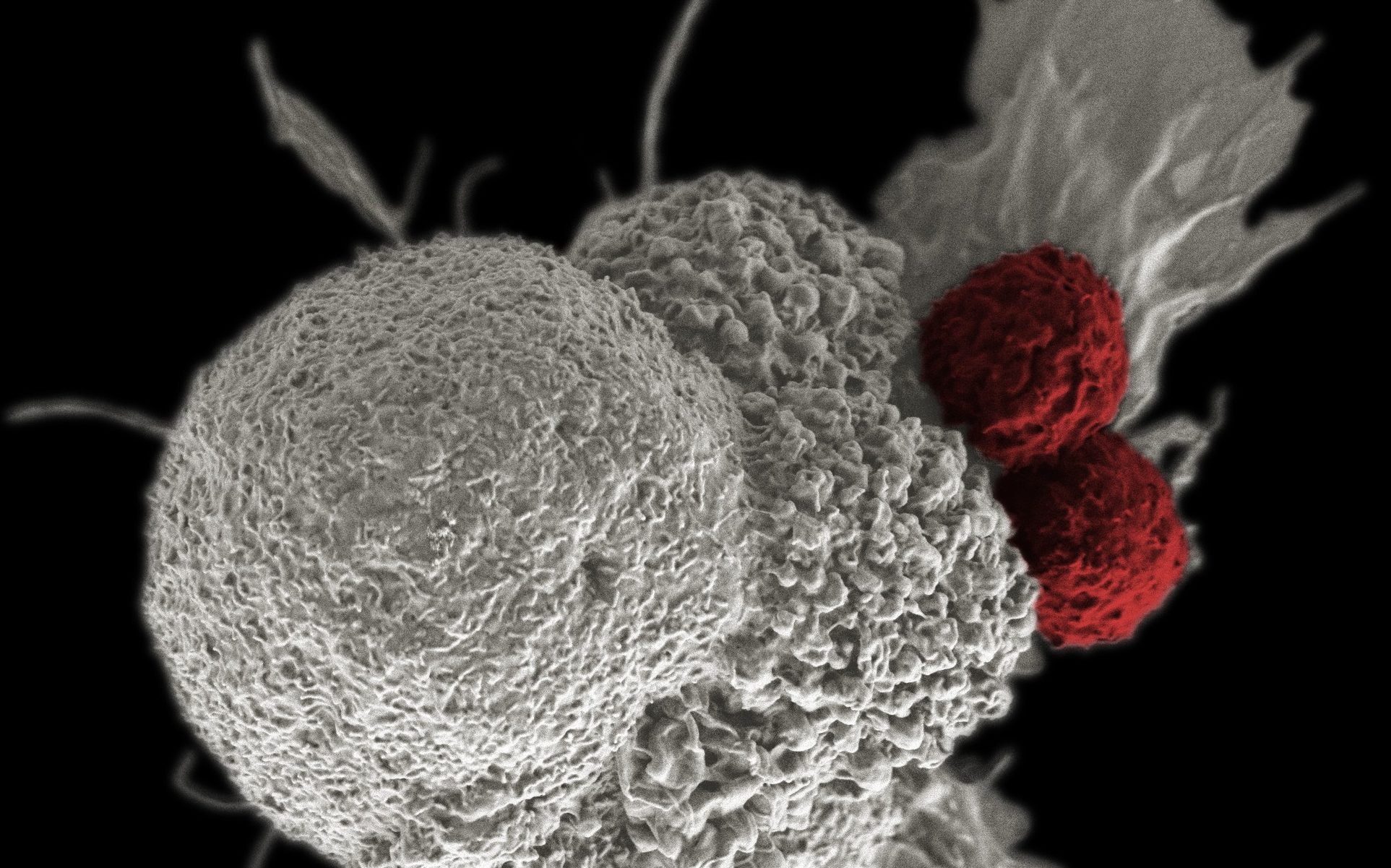 From Economy:  NCI T cell attack cancer —  National Cancer Institute \ Duncan Comprehensive Cancer Center at Baylor College of Medicine
