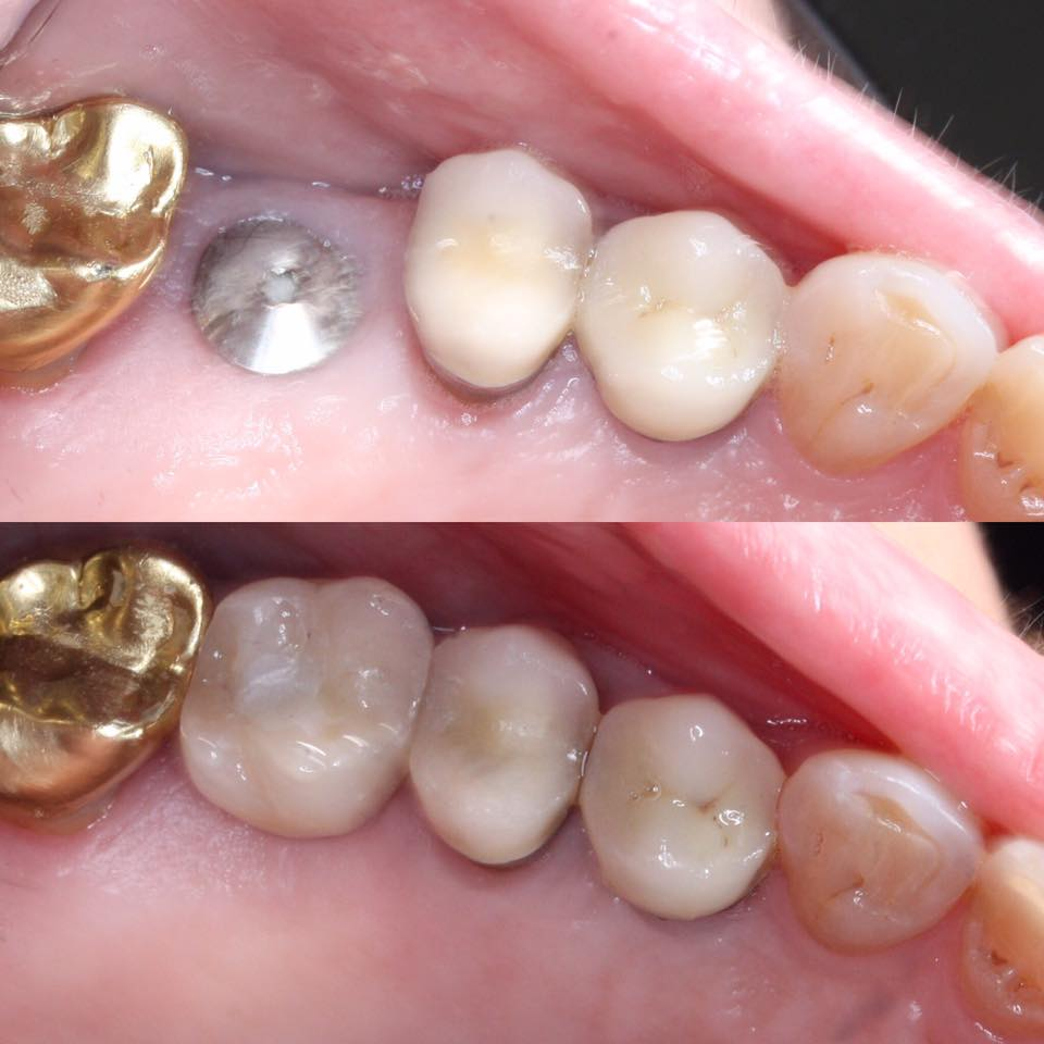Dental implant for a molar tooth