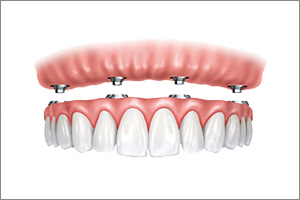 dentures can be held securely with implants