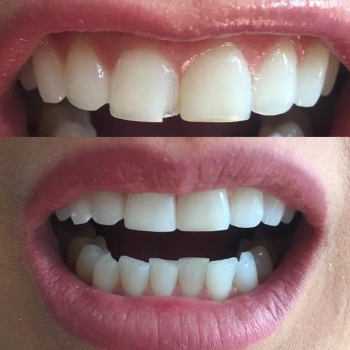 composite resin bonding / dentist leila haywood