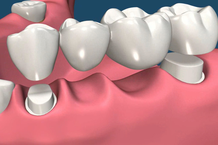 the teeth either side of the gap are prepared and the bridge is precision designed and bonded in place