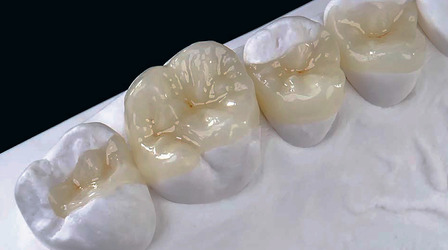 porcelain inlays and onlays dentist