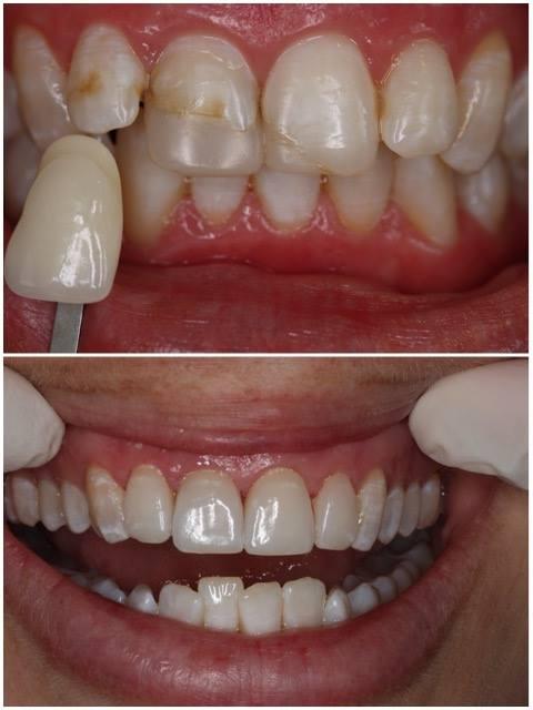 4 Porcelain veneers and crowns   F 30's following trauma  Dentist: Leila Haywood