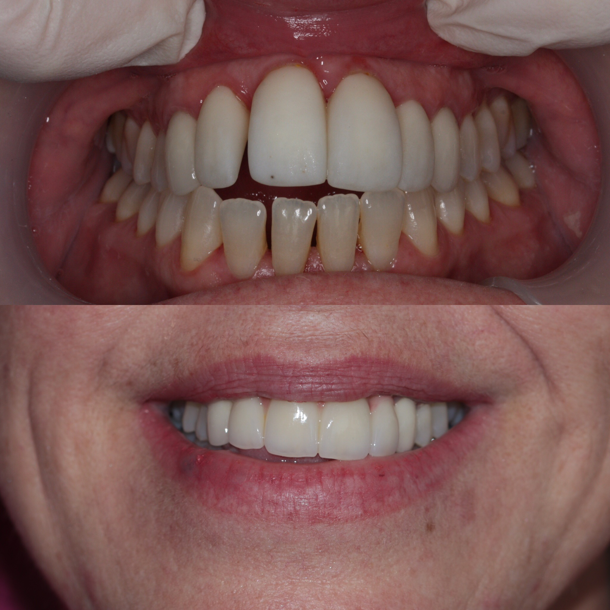 A new smile for this wonderful woman with 4 porcelain crowns
