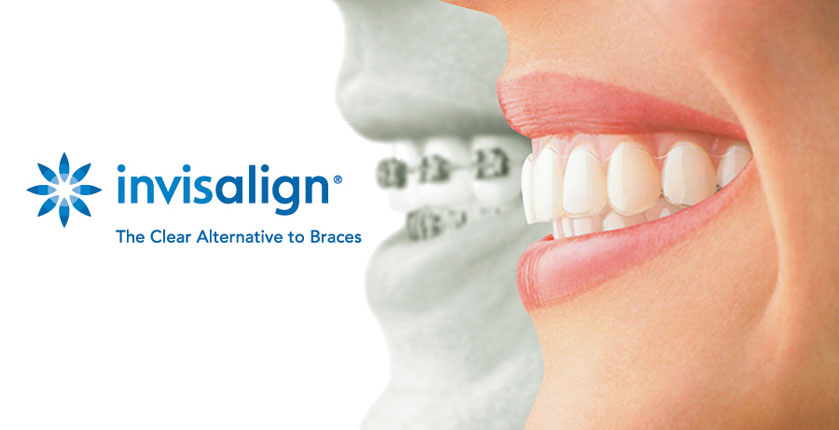 invisalign dentist brisbane near me.jpg