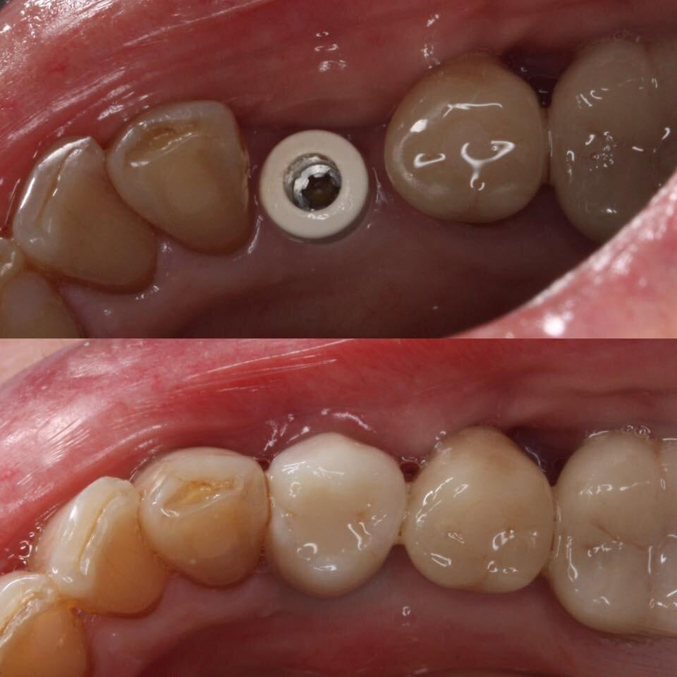 Lower premolar implant