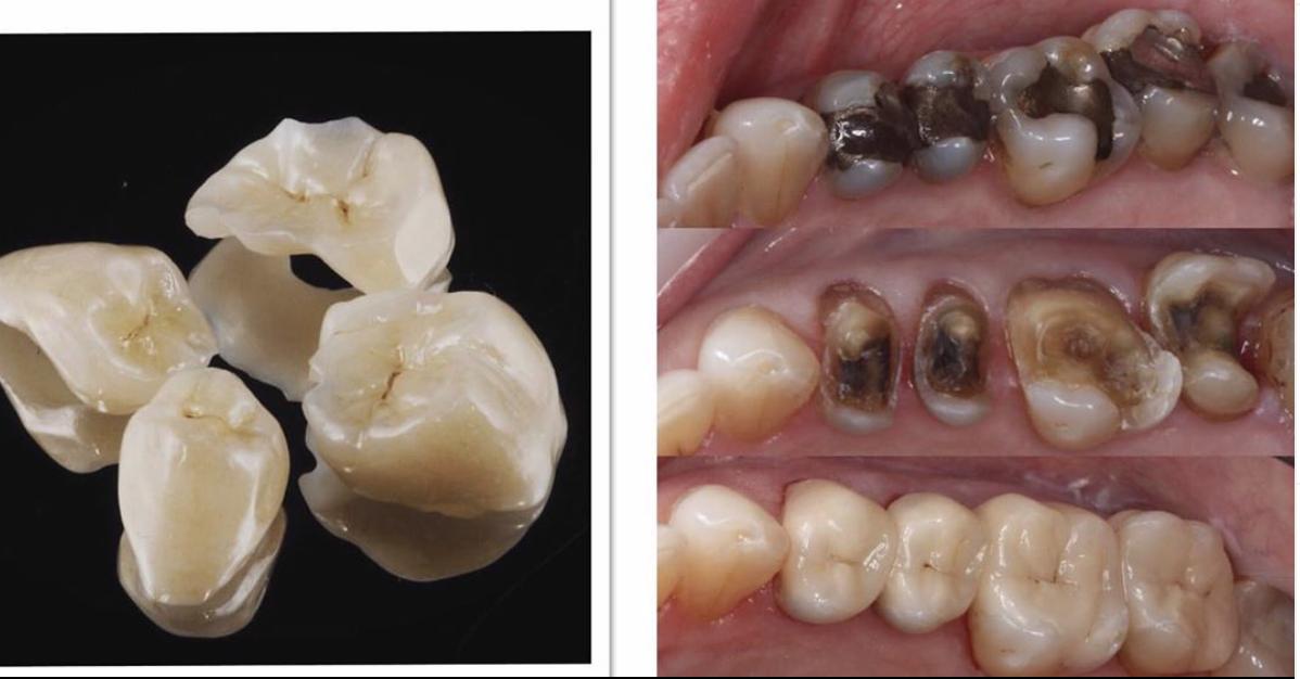 3D printing Brisbane Dentistry.png