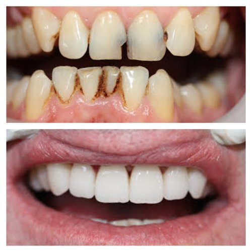 Male in 50's, teeth whitening, preventive care, and 6 porcelain crowns copy.jpg