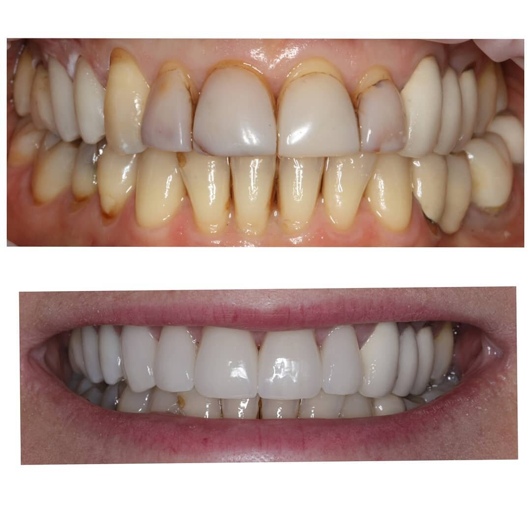 before and after 7 crowns, 15-22, wanted to retain bridge 13-15.jpg