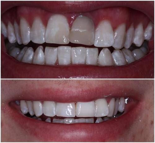 Crown for 18 year old male for central incisor after teeth whitening .jpeg