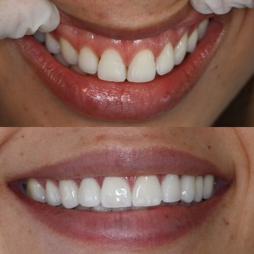 Porcelain crowns for young female in 20's requesting broader and perfect smile copy.jpeg