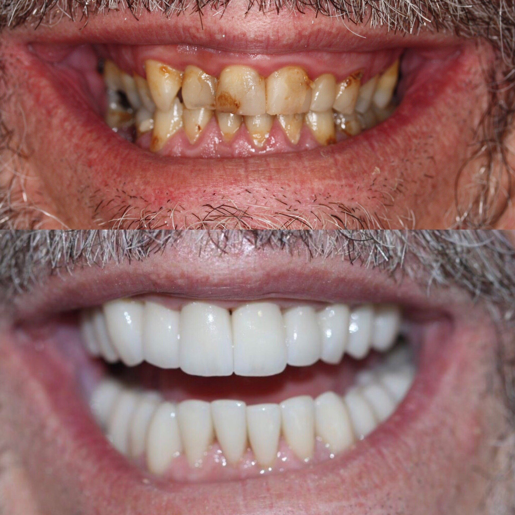 Full mouth rehabilitation male in 50's, request for natural but fresh appearance .jpg