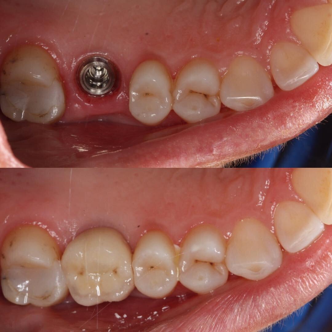 Implant upper molar, F 50's.jpg