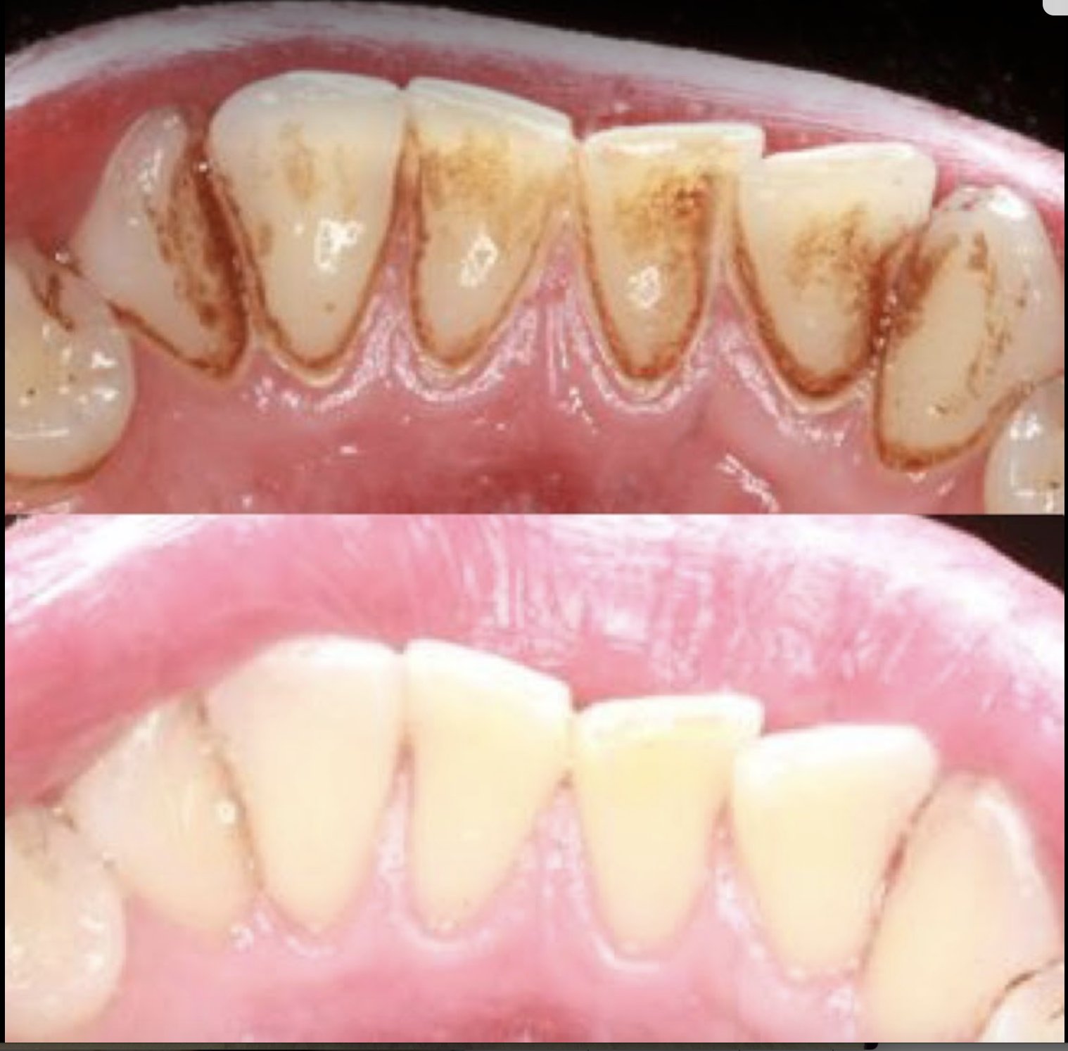Before and after professional dental cleaning