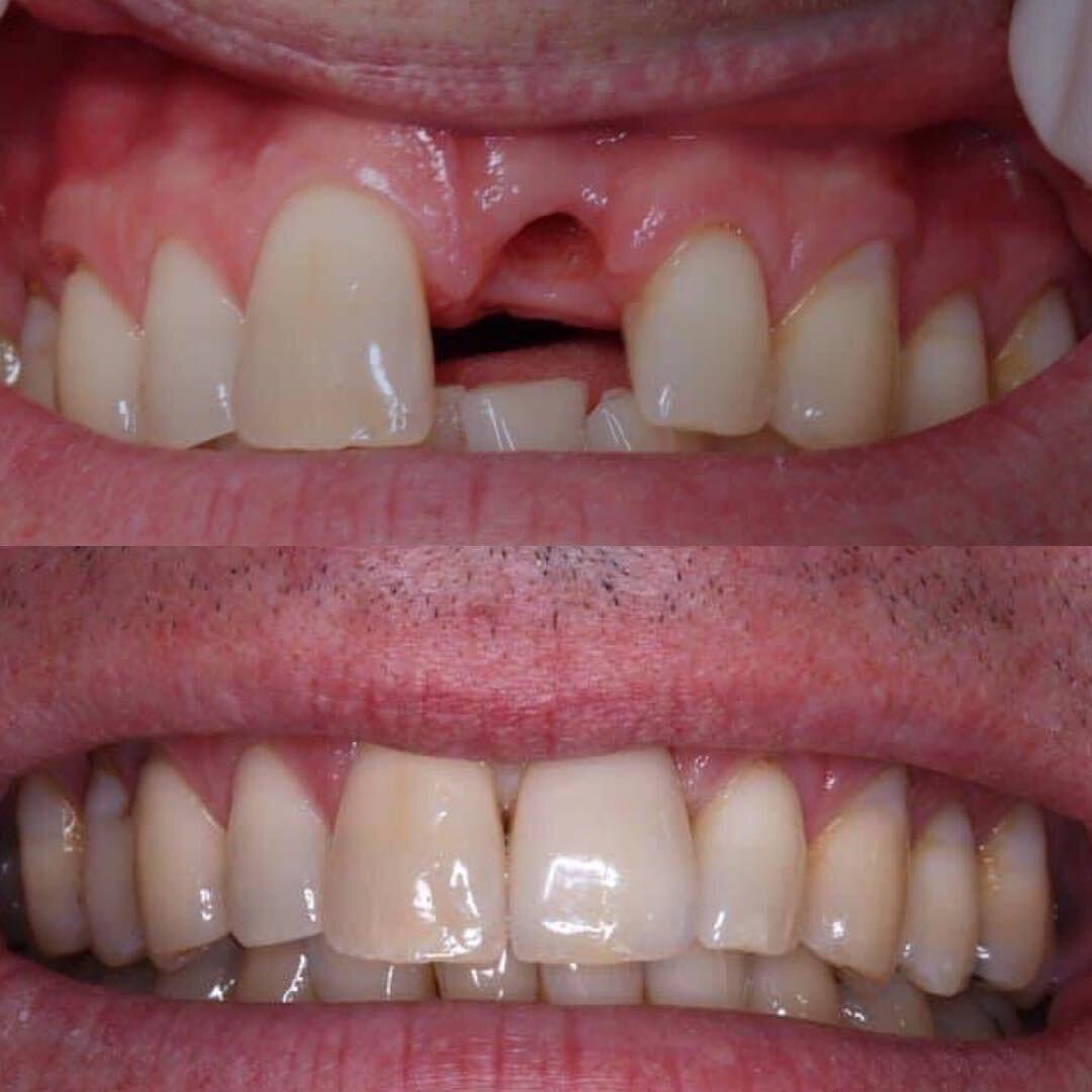 Dental Implants Spring Hill