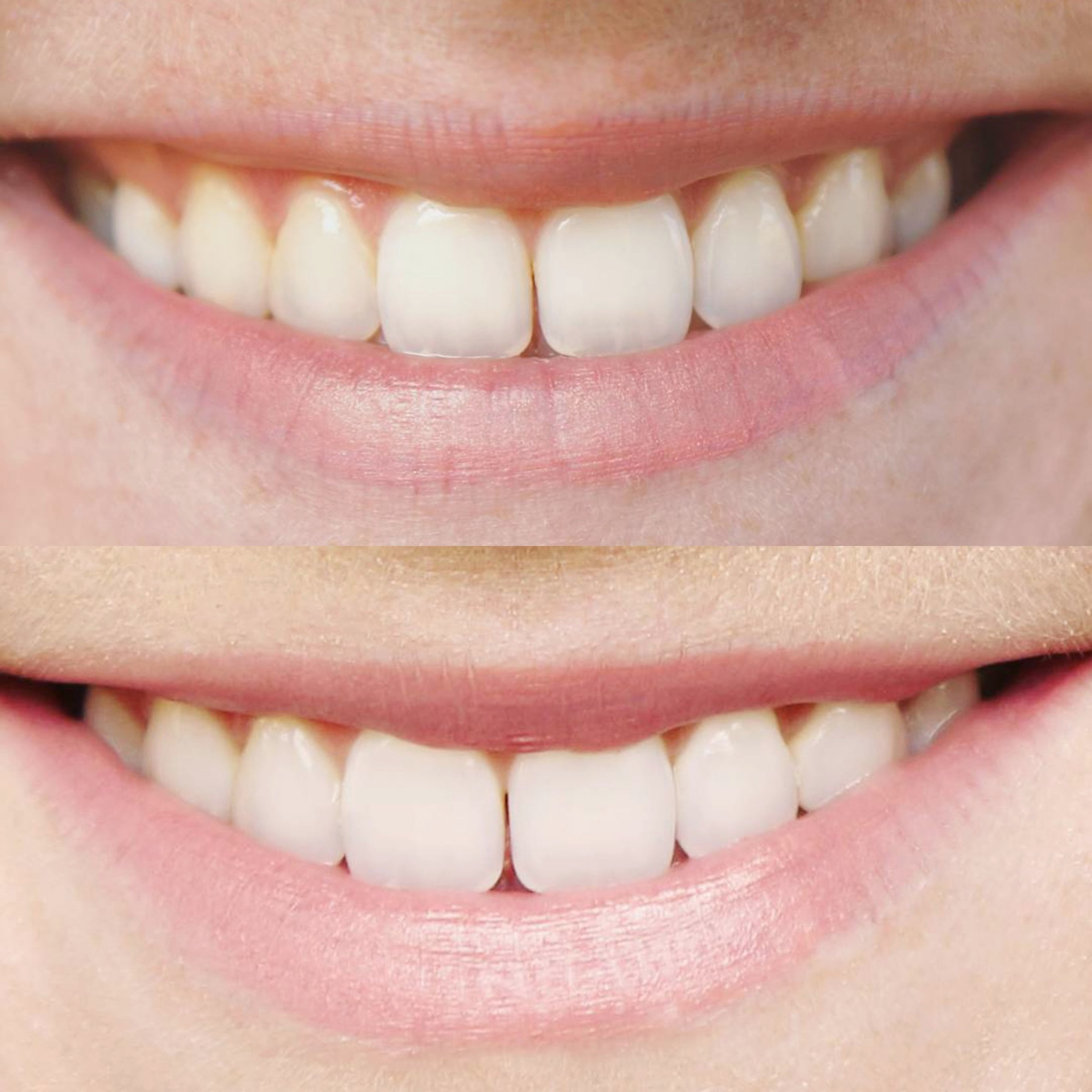 Before and After Smile Brilliant Teeth Whitening