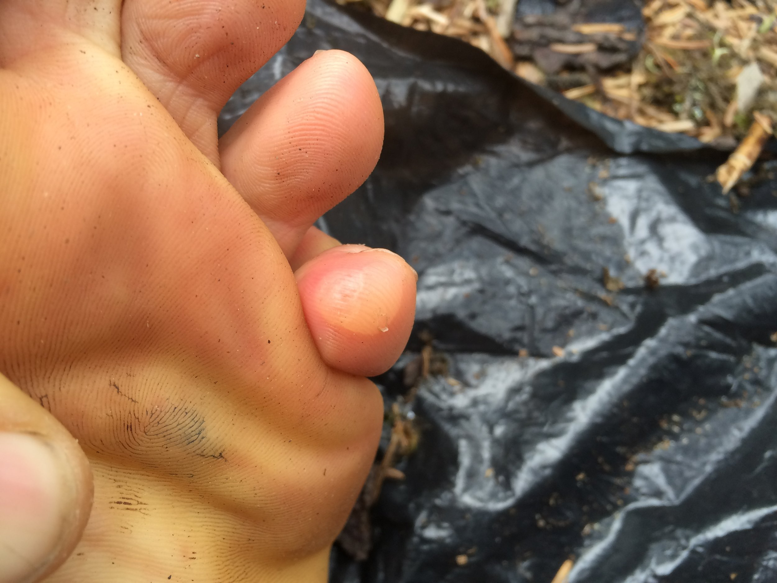 Blister within a blister