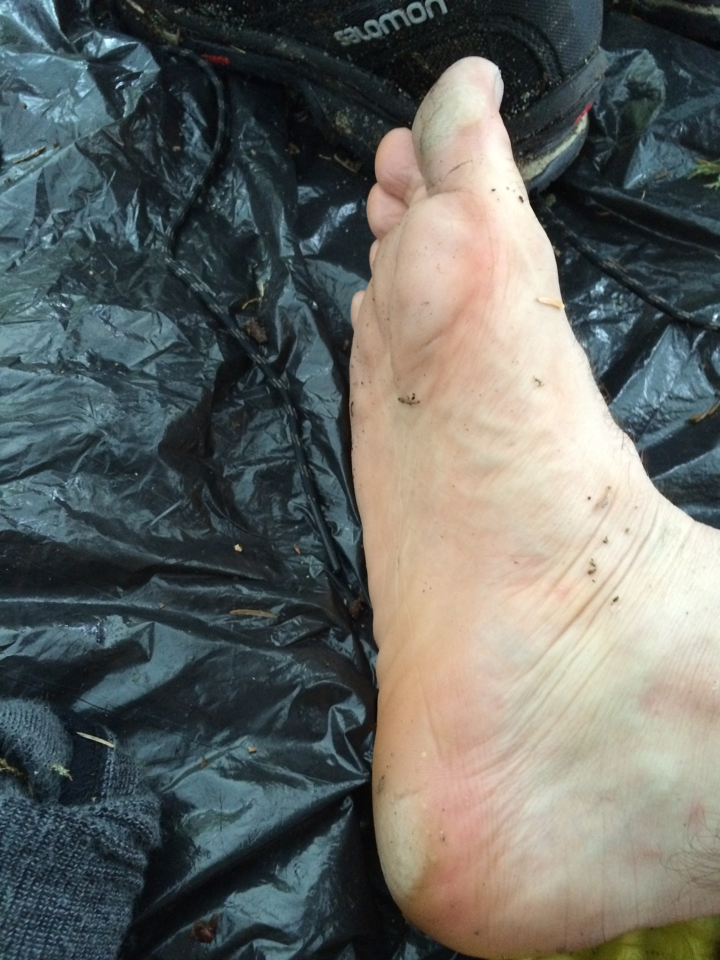 My foot after a long day in wet boots... it doesn't usually look like that LOL