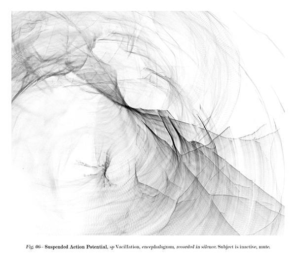 archival pigment print, Encephalograms  series, 2005