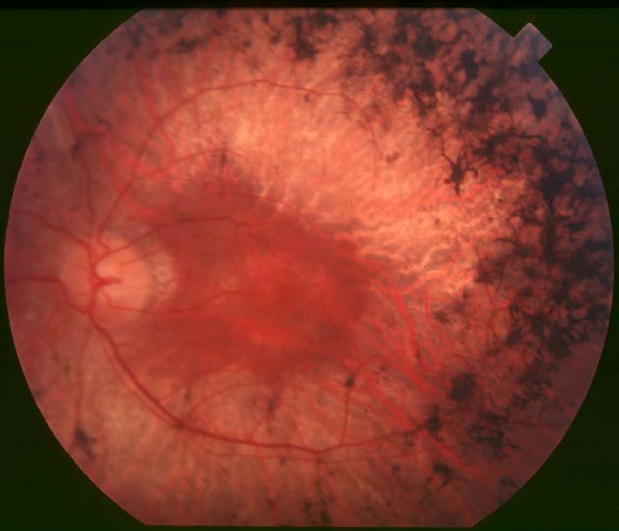 Retinitis Pigmentosa - RP is a genetic disorder which affects 1 in 4000 people that leads to the loss of photoreceptors in the back of the eye. Late stage characteristics include severe tunnel vision and night blindness. Learn more ➝