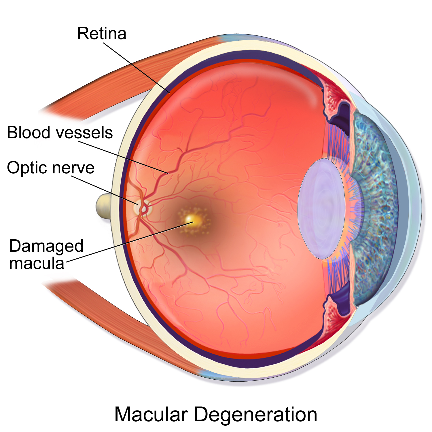 Macular Degeneration - AMD is a visual disorder characterized by a large blind spot in the center of the field of vision. There are two types of AMD: Wet and Dry. In Dry-AMD, small white-yellow deposits called drusen form on the center of the retina which causes it to to degenerate over time. About 80% of all AMD cases are dry-AMD. Currently, there is no effective therapy for dry-AMD.Learn more ➝
