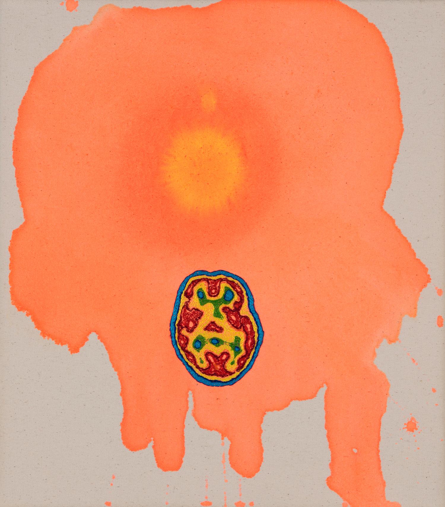 Bipolar Stain (sun spot) 2017