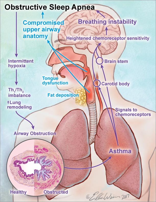 Obstructive Sleep Apnea in Asthma