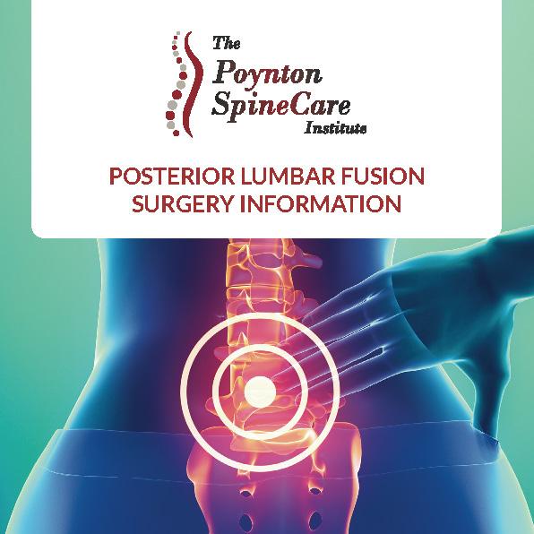 Posterior Lumbar Fusion Surgery