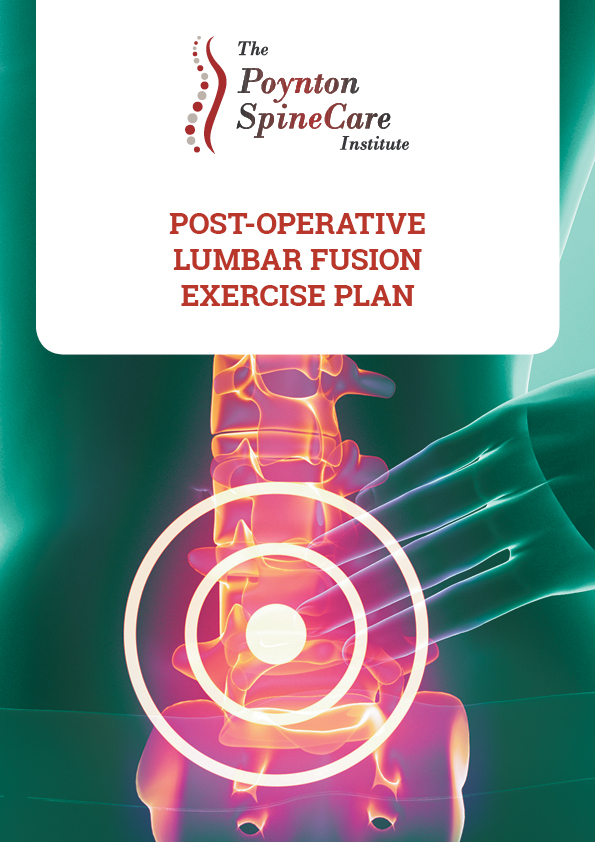 Post-Operative Lumbar Fusion Exercise Plan v4.jpg