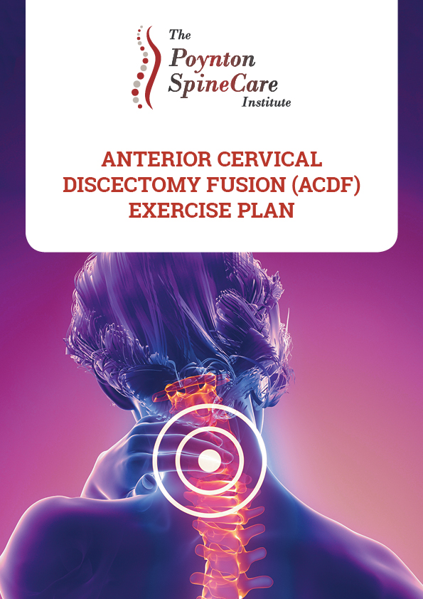 Anterior Cervical Discectomy Fusion (ACDF) Exercise Plan