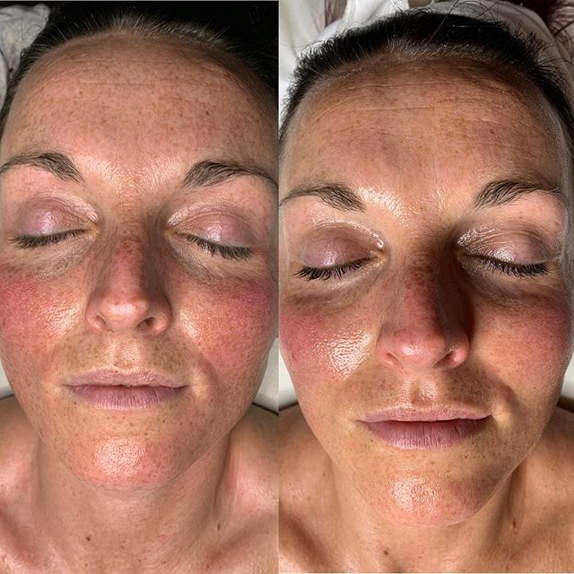PROGRESS! ⠀ Usually people get more sun damage in the summer, but not @cassieannmajor! The photo on the right is her progress after only 8 weeks and I can't believe how much we've brightened and smoothed her skin in that time! We've achieved these results with a customized routine of @cosmedix_ skincare that she uses every day at home, and 4 benefit vitamin c peels in office with me, each spaced 2 weeks apart.  I cannot wait to share more of her progress in the coming months! Who's next?