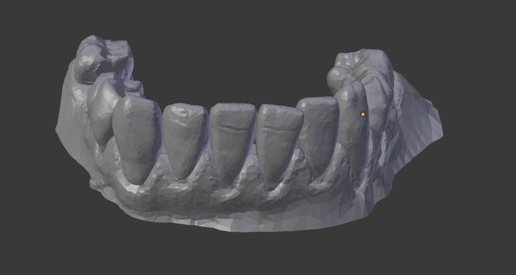 Teeth bottom: start