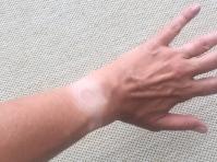 tan-lines.JPG