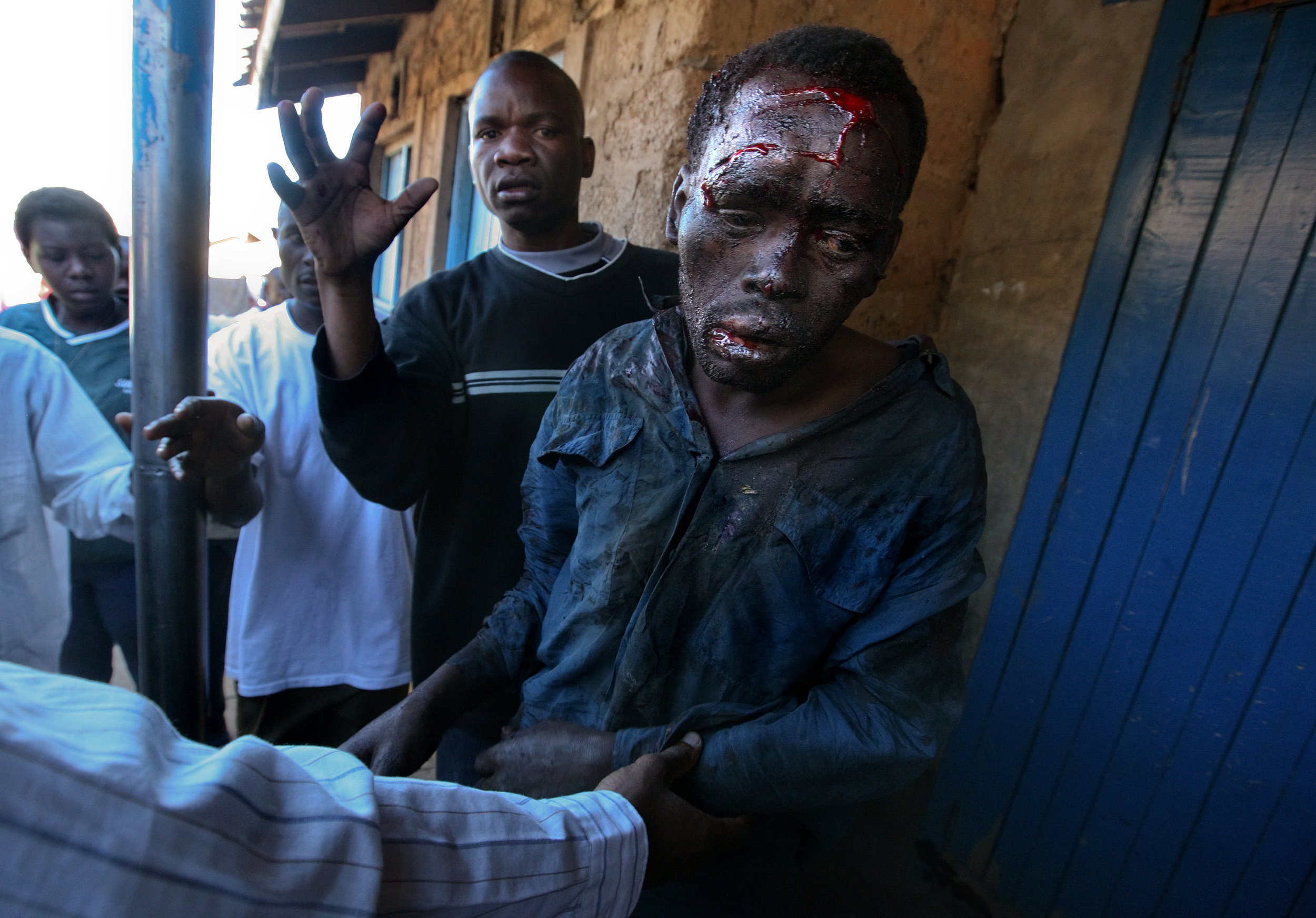 A man who was hit on the head with a hoe and beaten by an angry crowd, is helped to the hospital by good samaritans. Looting by ODM supporters sparked riots in the Mathare slums, pitting rival ethnic groups against each other across a barricade.