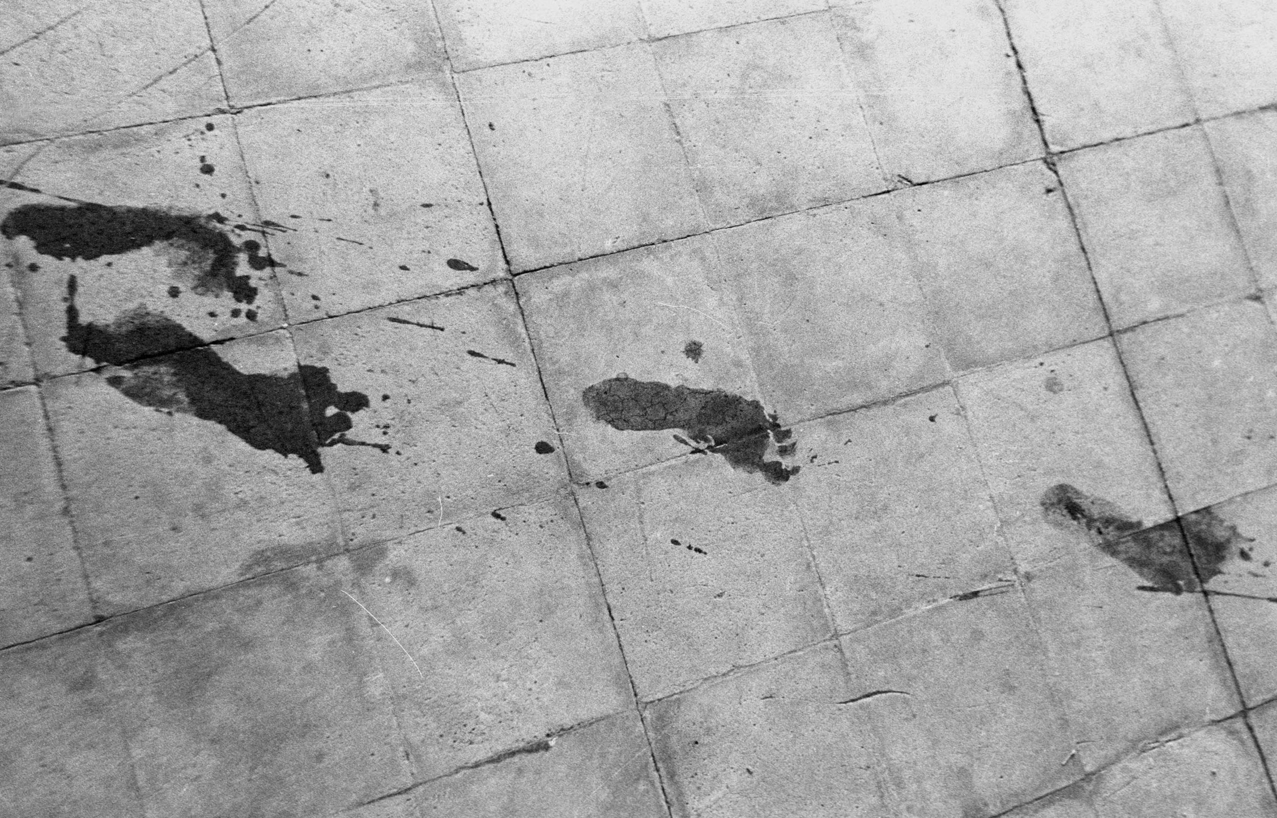 A trail of urine footprints left by a leaking fistula patient at the Addis Ababa fistula hospital in Ethiopia.