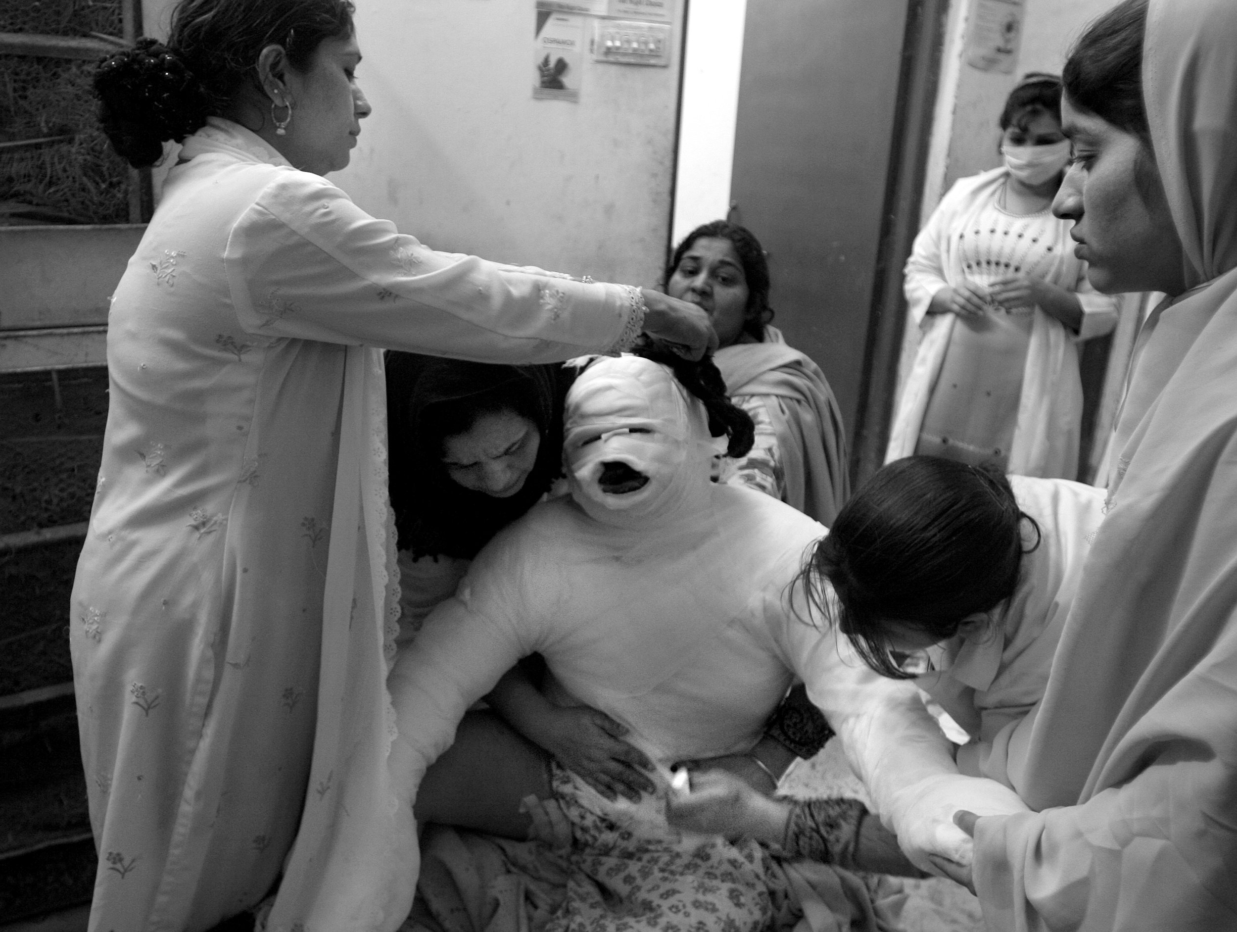24-year-old Roshan, was burned from the waist up two days prior when, according to her sisters, she set herself on fire after quarreling with her husband. She is being treated at the Shafik Aziz Hospital which is a tiny four room free burn clinic in Lahore, Pakistan.